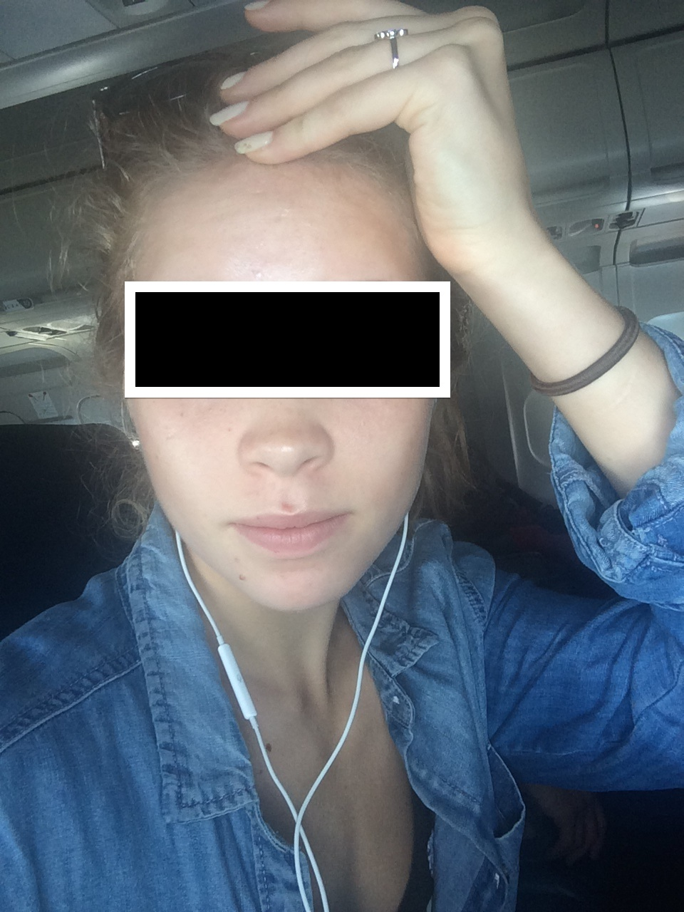 Organic Acne Help